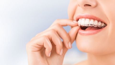 Invisalign Clear Aligners Kamloops, BC